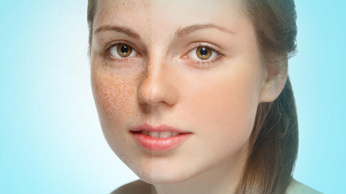 Những phương pháp trị nám da