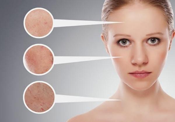 Bệnh da tiếp xúc do mỹ phẩm