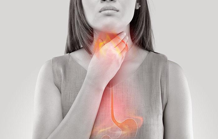 Hình ảnh: Ợ nóng - một trong những triệu chứng điển hình của trào ngược dạ dày (Internet)