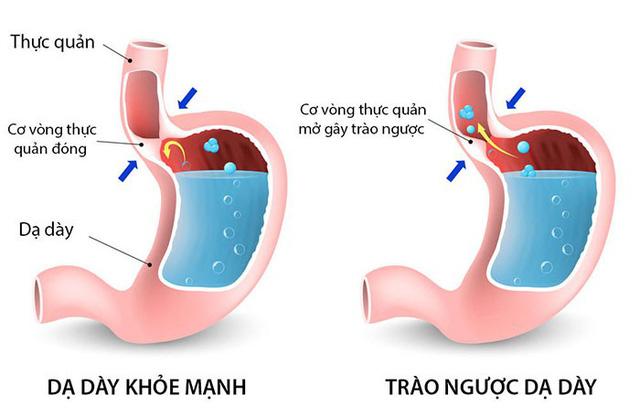 Hình ảnh: Acid dạ dày tăng cao kích thích cơ vòng thực quản mở, dịch vị dạ dày trào ngược lên thực quản (Internet)
