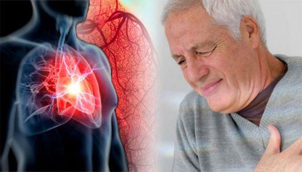 Nhồi máu cơ tim có nguy hiểm không?