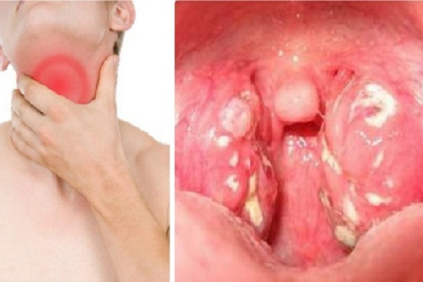 Dấu hiệu sớm của ung thư vòm họng phát hiện như thế nào?