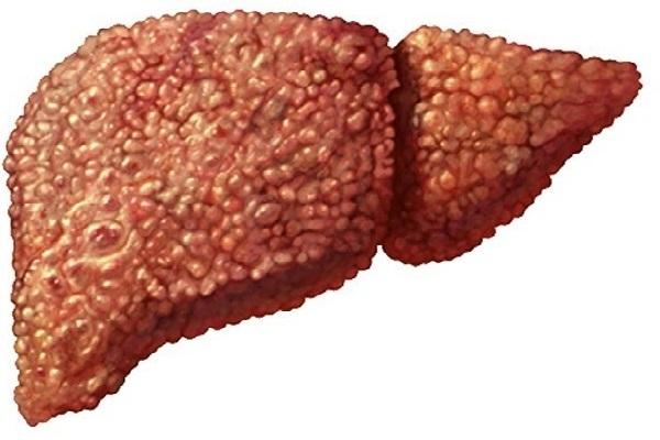 Gan nhiễm mỡ nên ăn gì và tránh ăn gì vào mùa Tết