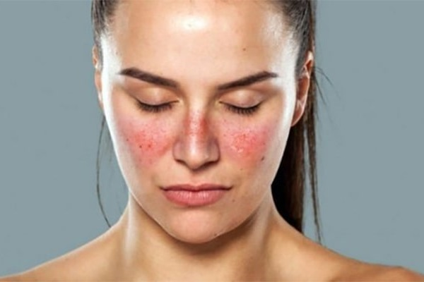 Lupus ban đỏ: Nguyên tắc và các phương pháp điều trị hiện nay