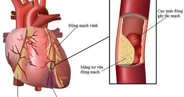 Nhồi máu cơ tim và những điều cơ bản cần biết