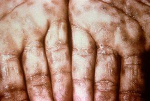 Triệu chứng bệnh giang mai giai đoạn 2 ở lòng bàn tay (nguồn: internet)