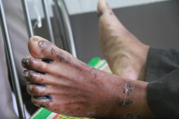 Bị cước chân: Triệu chứng và Phương pháp điều trị hiệu quả