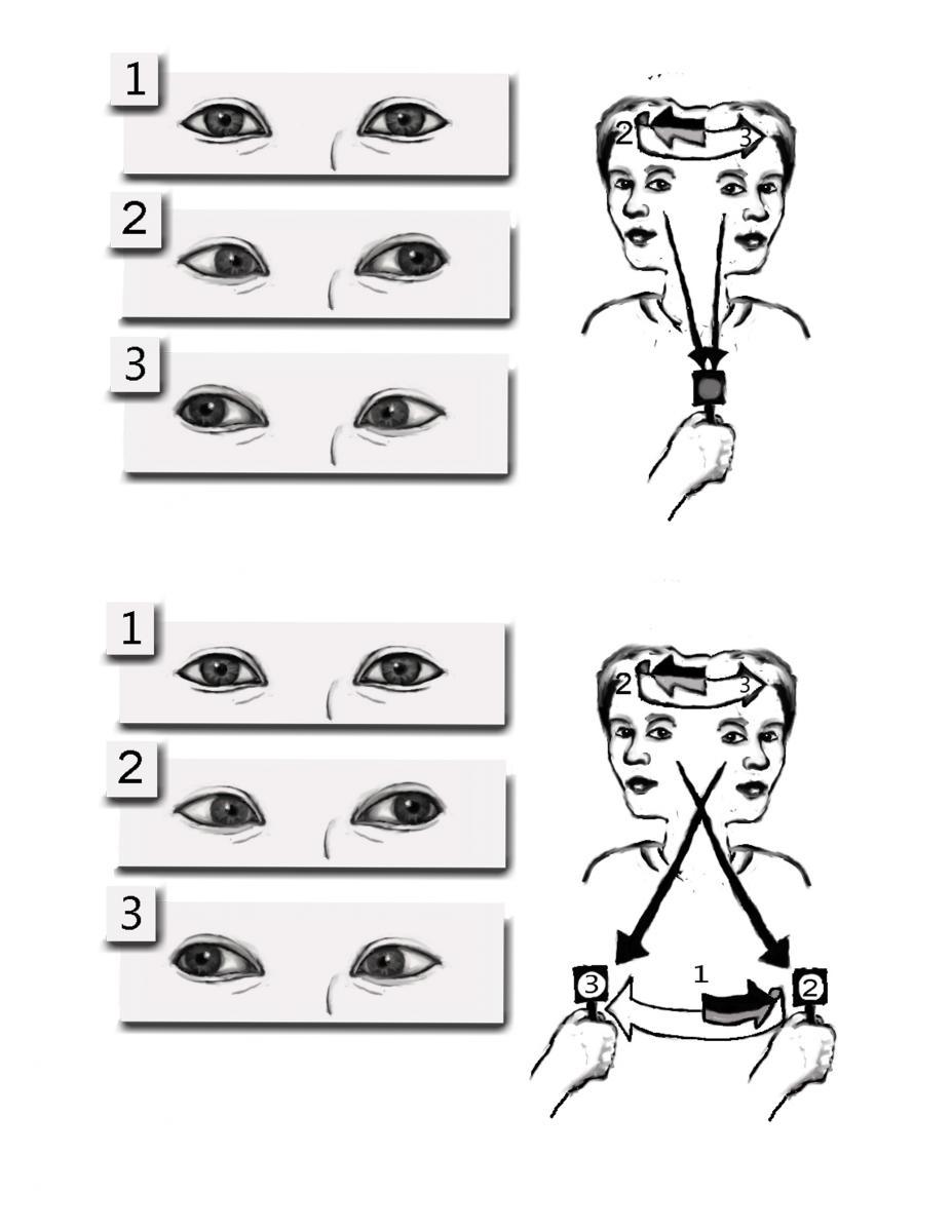 Bài tập ổn định mắt (Ảnh: Internet).