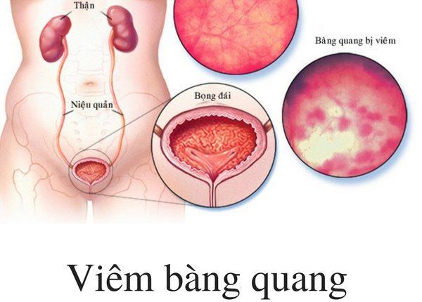 Triệu chứng của viêm bàng quang