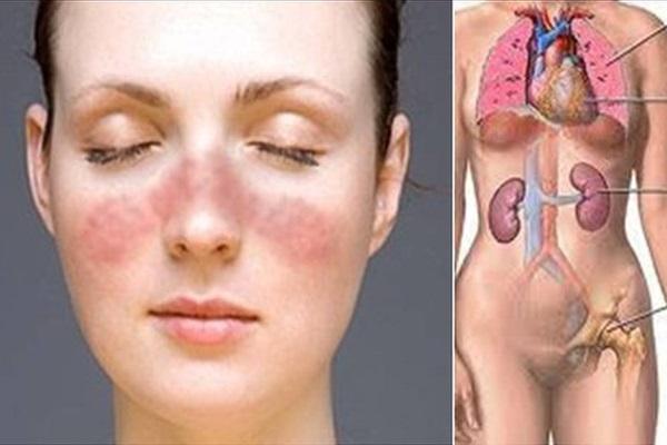 Tổng quan về viêm cầu thận do lupus ban đỏ hệ thống