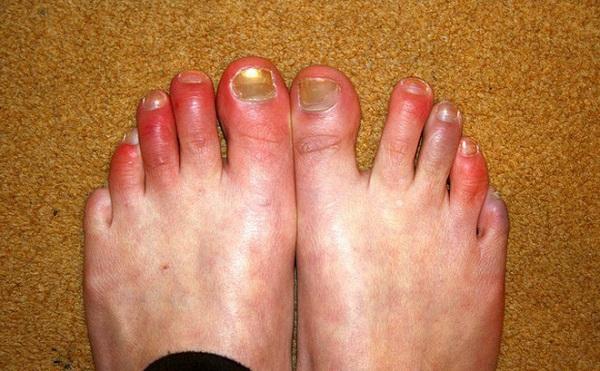 Hình ảnh: Các bài thuốc trị cước chân (Internet)