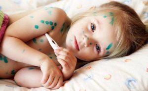 Bệnh thủy đậu điều trị bằng cách dùng thuốc giảm triệu chứng cho trẻ