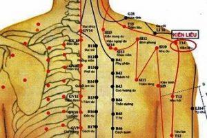 Châm cứu là phương pháp chữa bệnh bằng kim châm vào huyệt đạo trên cơ thể để giúp khí huyết lưu thông. Châm cứu trong bệnh viêm quanh khớp vai có tác dụng giảm đau mạn tính, tăng hiệu quả điều trị của thuốc (Ảnh: Internet).