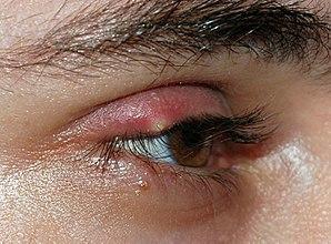Biểu hiện của lẹo mắt (nguồn: internet)