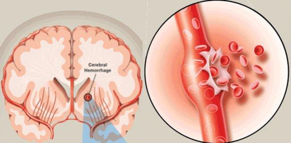 Xuất huyết não chiếm khoản 20% trường hợp tai biến mạch máu não