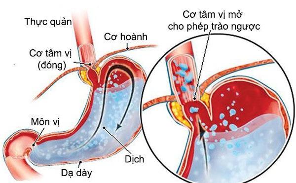 Hình ảnh trào ngược dạ dày
