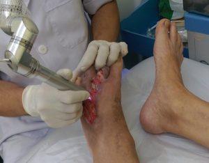 Biến chứng của cước chân có thể gây hoại tử vô cùng nguy hiểm. (Ảnh Internet)
