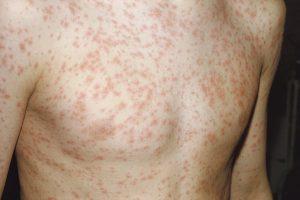 Triệu chứng của Rubella với các nốt ban trên da