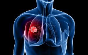 Rất khó phát hiện ung thư phổi ở giai đoạn sớm