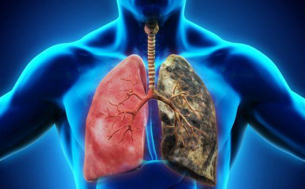 ung thư phổi ở nam giới