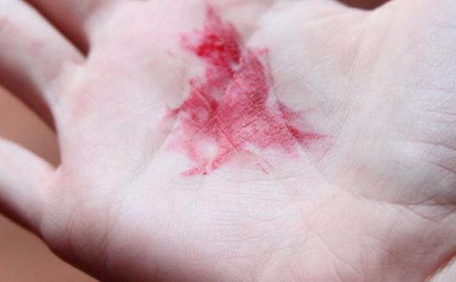 Ho dai dẳng, ho ra máu là những dấu hiệu của ung thư phổi