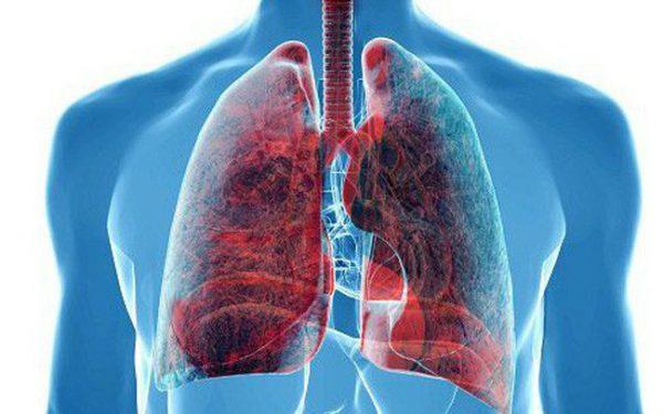 Ung thư phổi ở nữ giới