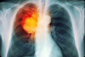 Triệu chứng ung thư phổi giai đoạn cuối