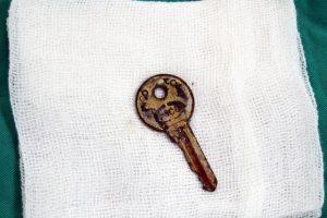 Bé gái 6 tuổi nuốt phải chìa khóa