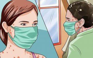 Biến chứng nguy hiểm của bệnh thủy đậu