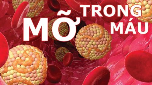 Chế độ ăn uống ngày Tết ảnh hưởng rất nhiều đến người bị máu nhiễm mỡ (nguồn: internet)