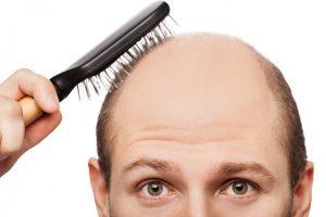 """""""Ngân hàng"""" tóc đầu tiên trên thế giới trị hói đầu từ các nang tóc được lưu trữ khi tóc còn chắc khỏe"""