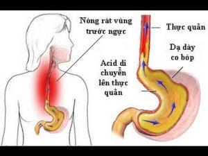 Hình ảnh: Trào ngược dạ dày làm tăng nguy cơ ung thư thực quản (Internet)