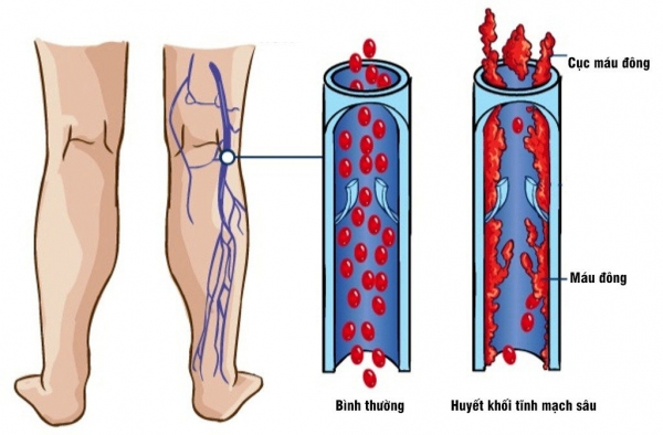Hình ảnh: Huyết khối tĩnh mạch sâu chi dưới (Internet)