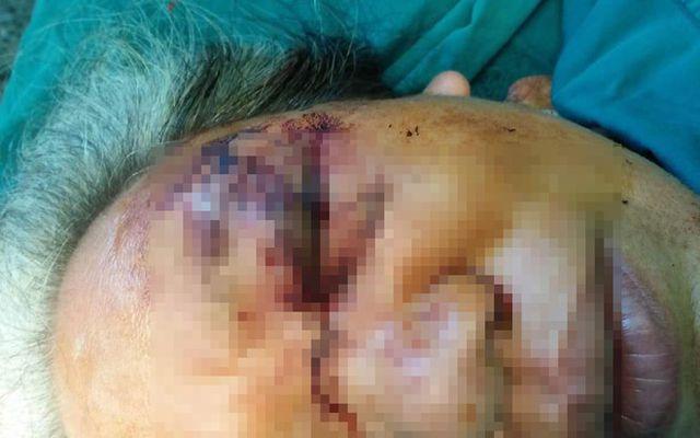 Bệnh nhân tổn thương nặng vùng mắt sau khi bị trâu húc.