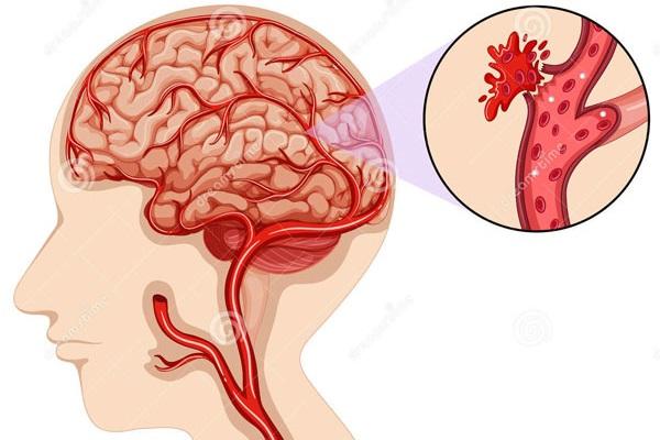 Xuất huyết não là gì? Những điều cần biết về xuất huyết não