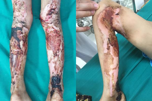 Chân bé trai bốc mùi do hoại tử, nhiễm trùng nặng, da bẩn đen dính chặt thuốc cùng giấy vào vết bỏng