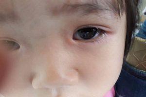 Rận mu ký sinh trên mi mắt bé gái