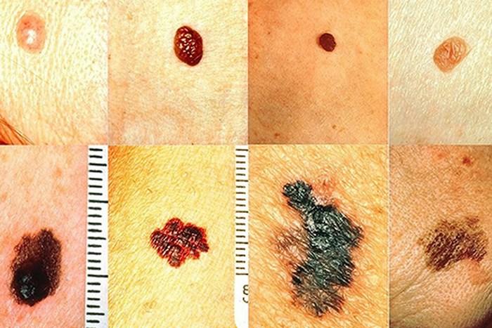 Triệu chứng của ung thư da