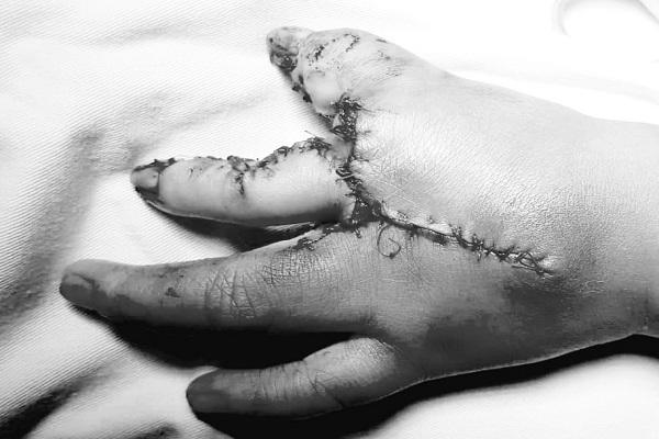 """Phẫu thuật tạo hình bàn tay """"càng tôm"""" cho bé trai 2 tuổi ở Sài Gòn"""