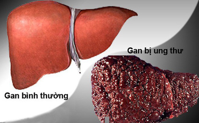 gan nhiễm mỡ có nguy hiểm không