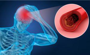 Các phương pháp điều trị thiếu máu não cụ thể