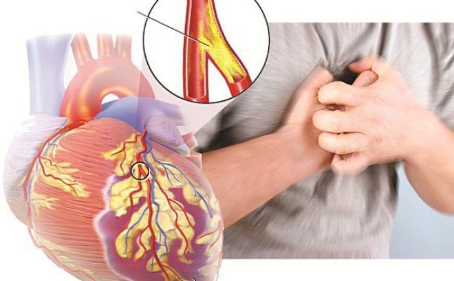 Bệnh động mạch vành vô cùng nguy hiểm và có thể dẫn tới tử vong