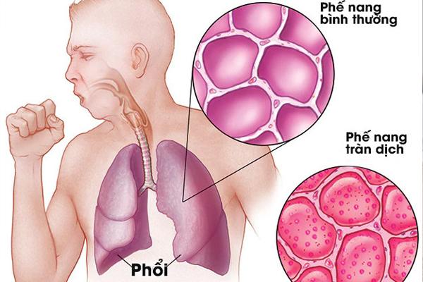 Triệu chứng của Covid-19 khác gì với cảm lạnh, cảm cúm