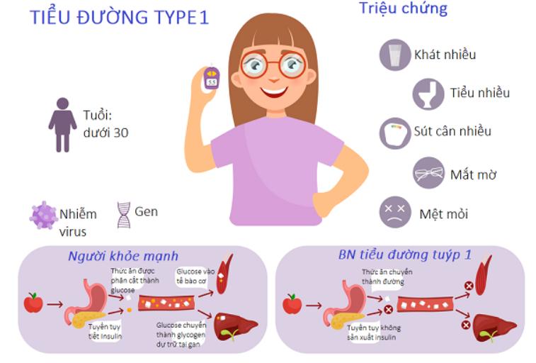 Triệu chứng tiểu đường type 1
