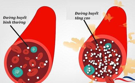 Đường huyết trong máu liên tục thay đổi và chịu sự chi phối của hoạt động ăn uống