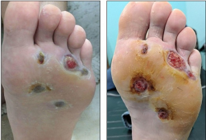 Tổn thương bàn chân là một trong các tình trạng nhiễm trùng thường gặp ở bệnh nhân tiểu đường