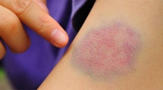 Xuất huyết dưới da là tình trạng xảy ra do mạch máu bị tổn thương