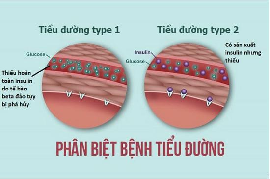 Phân biệt tiểu đường typ 1 và typ 2