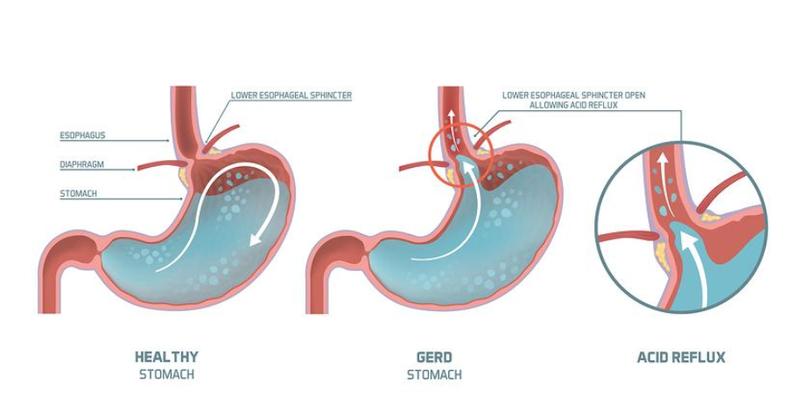 Hiện nay có nhiều phương pháp điều trị trào ngược dạ dày thực quản theo tây y tùy thuộc vào mức độ bệnh của bệnh nhân.