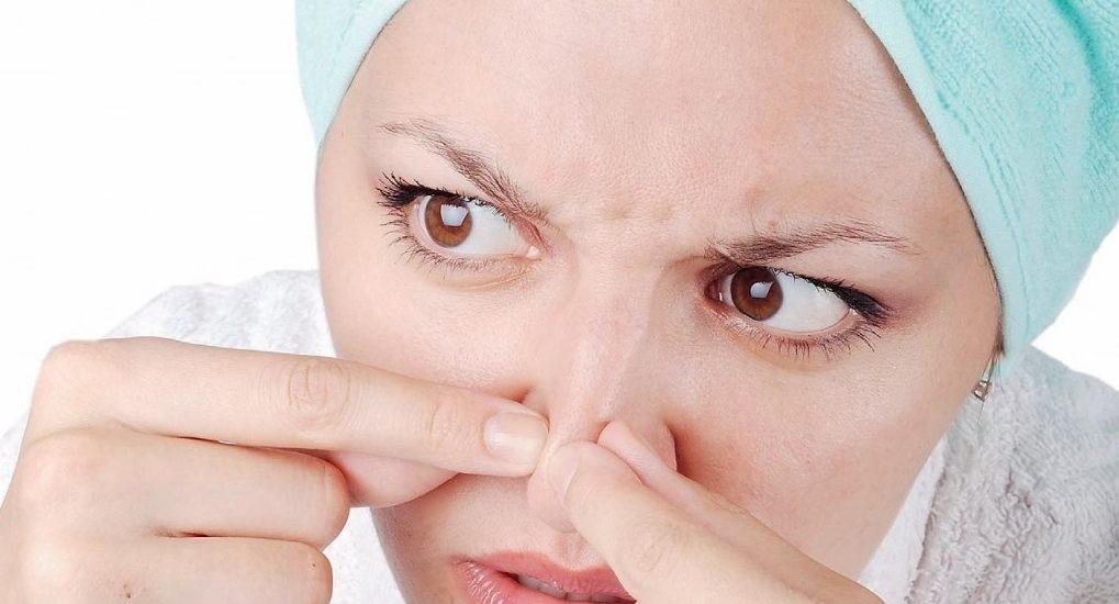 Mụn cám ở mũi nguyên nhân và cách điều trị - Thầy Thuốc Việt Nam